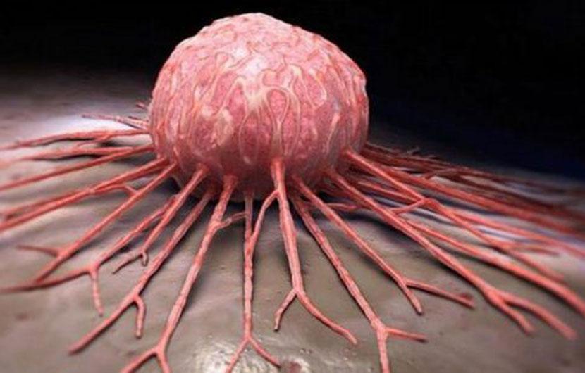 Cilët janë faktorët që mund të shkaktojnë kancer?