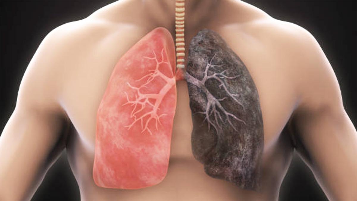 Si Të Pastroni Mushkëritë Nga Nikotina me Gjithçka Natyrale