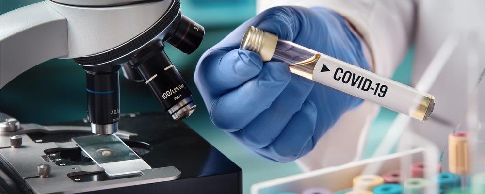 """Dr. Koni:""""COVID-19 ka humbur virulencën""""  Rastet po kalojnë më lehtë se në shkurt- mars"""