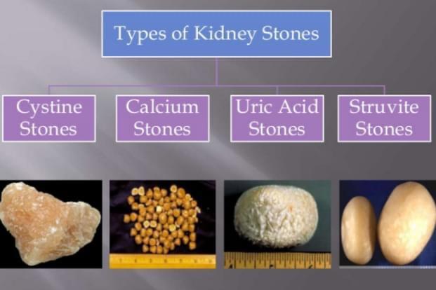 A është i nevojshëm intervenimi kirurgjik (urologjik) për gurët në traktin urinar ?