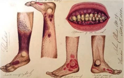 Pse ndodh të kemi gjakderdhje në mishin e dhëmbëve?